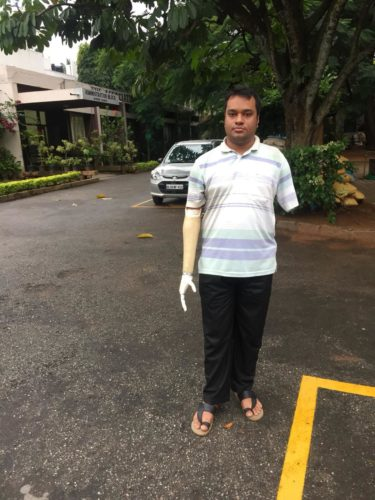 prosthetics amputees india